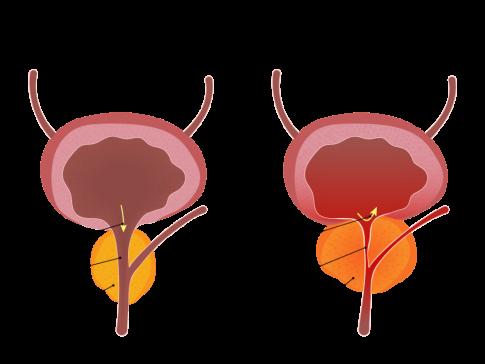 Prostate Graphic